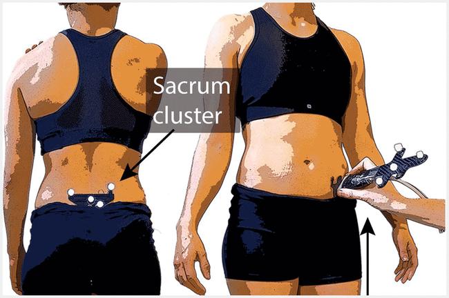 Sacrum cluster